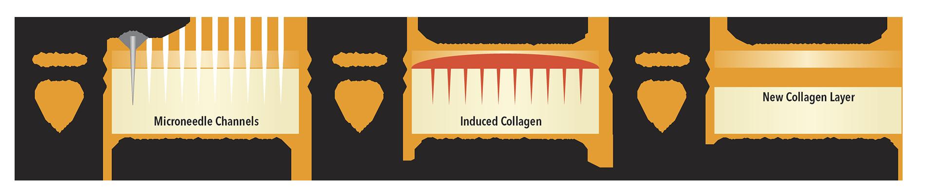 proceso skin gen